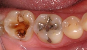 Remedies To help you Maintain Cavities And Dental Hygiene