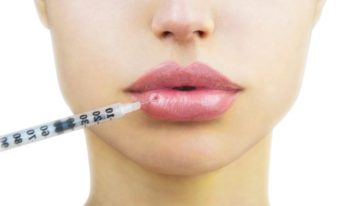A Beginner's Guide to Lip Injections