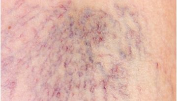 How to Recognize Spider Veins