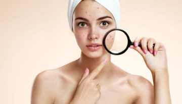 Tips for Using the Right Acne Treatment