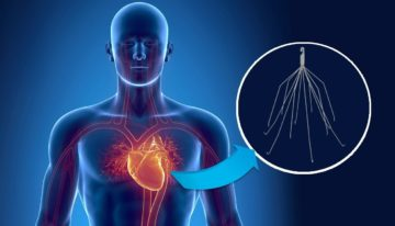 The basis for IVC filter lawsuits