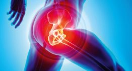 Should You Get Hip Replacement?